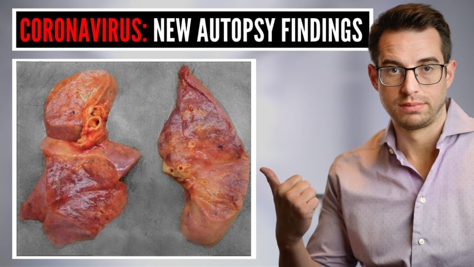 What Doctors Are Learning From Autopsy Findings of Coronavirus (COVID-19) Patients