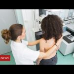 Coronavirus: the cancer patients suffering serious delays in treatment – BBC News