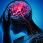 COVID-19 may be linked to brain complications, study finds. But does it cause them?