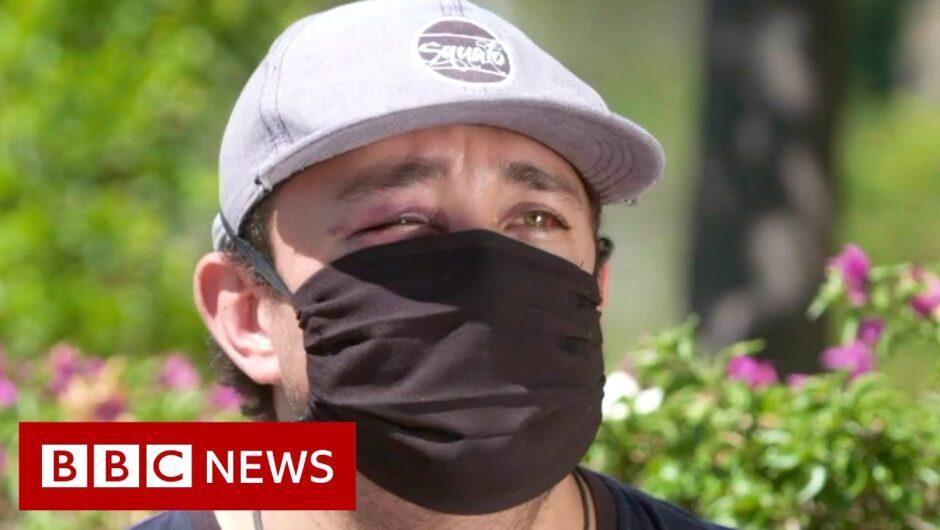 Coronavirus: Mexico healthcare workers attacked – BBC News