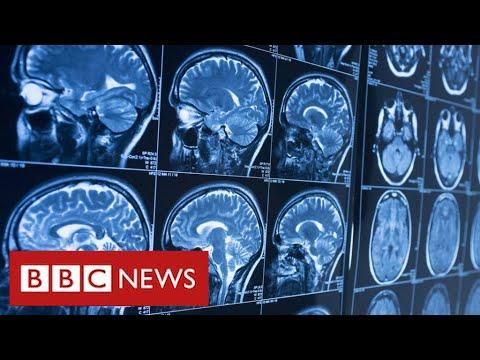 Covid survivors may face life-long brain injuries – BBC News