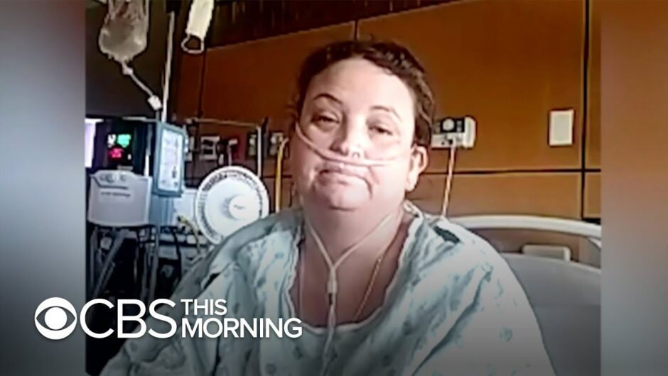 Coronavirus cases surge in the Dakotas