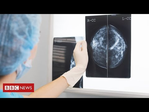 Huge fall in cancer patients seeing specialists during coronavirus pandemic  – BBC News