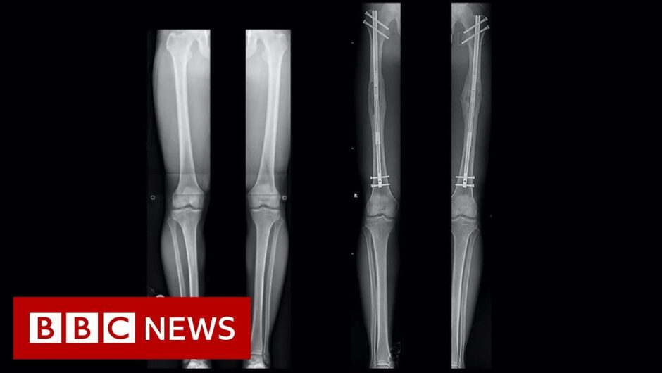 Leg-lengthening: The people having surgery to be a bit taller – BBC News