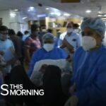 India surpasses 20 million COVID-19 cases